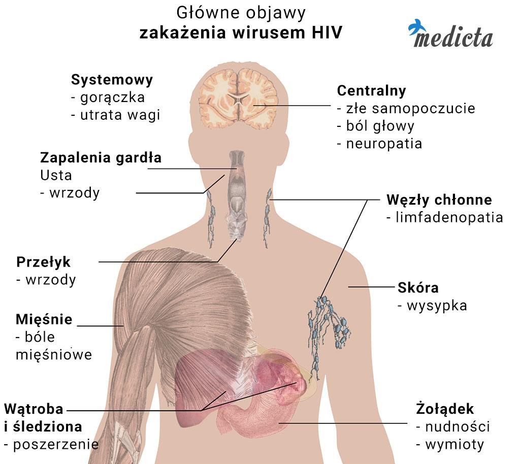 Główne objawy zakażenia wirusem HIV