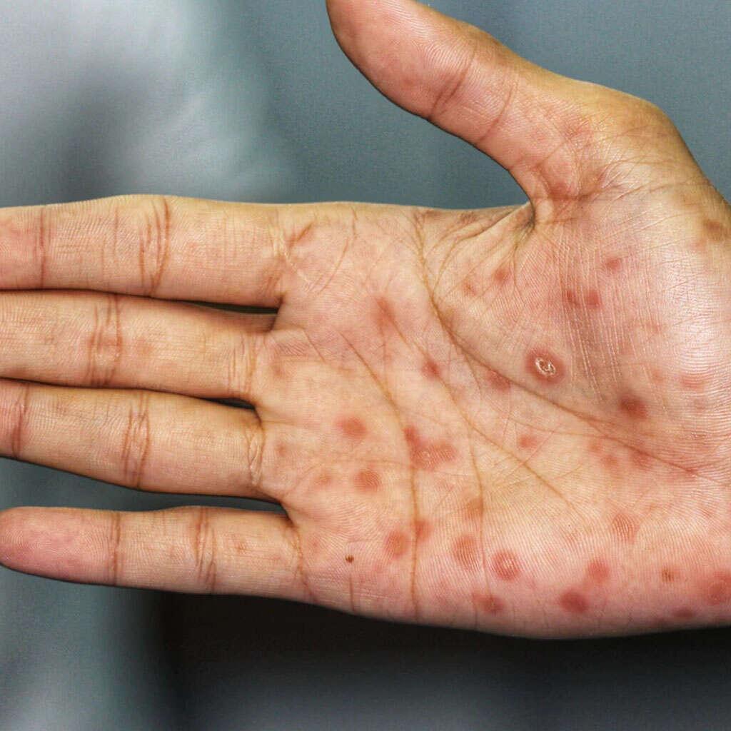 kiła syfilis